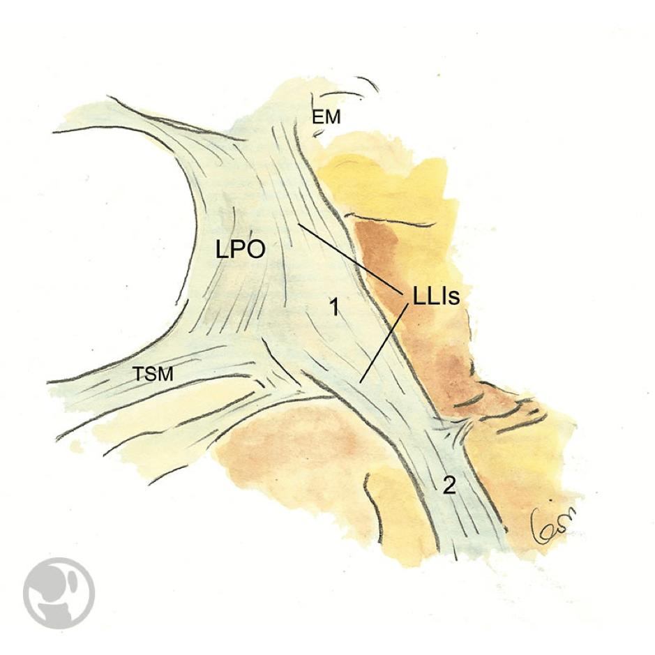 Relaciones anatómicas del ligamento colateral medial o interno superficial (LLIs), y el ligamento posterior oblicuo (LPO). Inserción tibial proximal del LLIs (1) e inserción tibial distal del LLIs (2). Tendón del semimembranoso (TSM). Epicóndilo medial (EM).