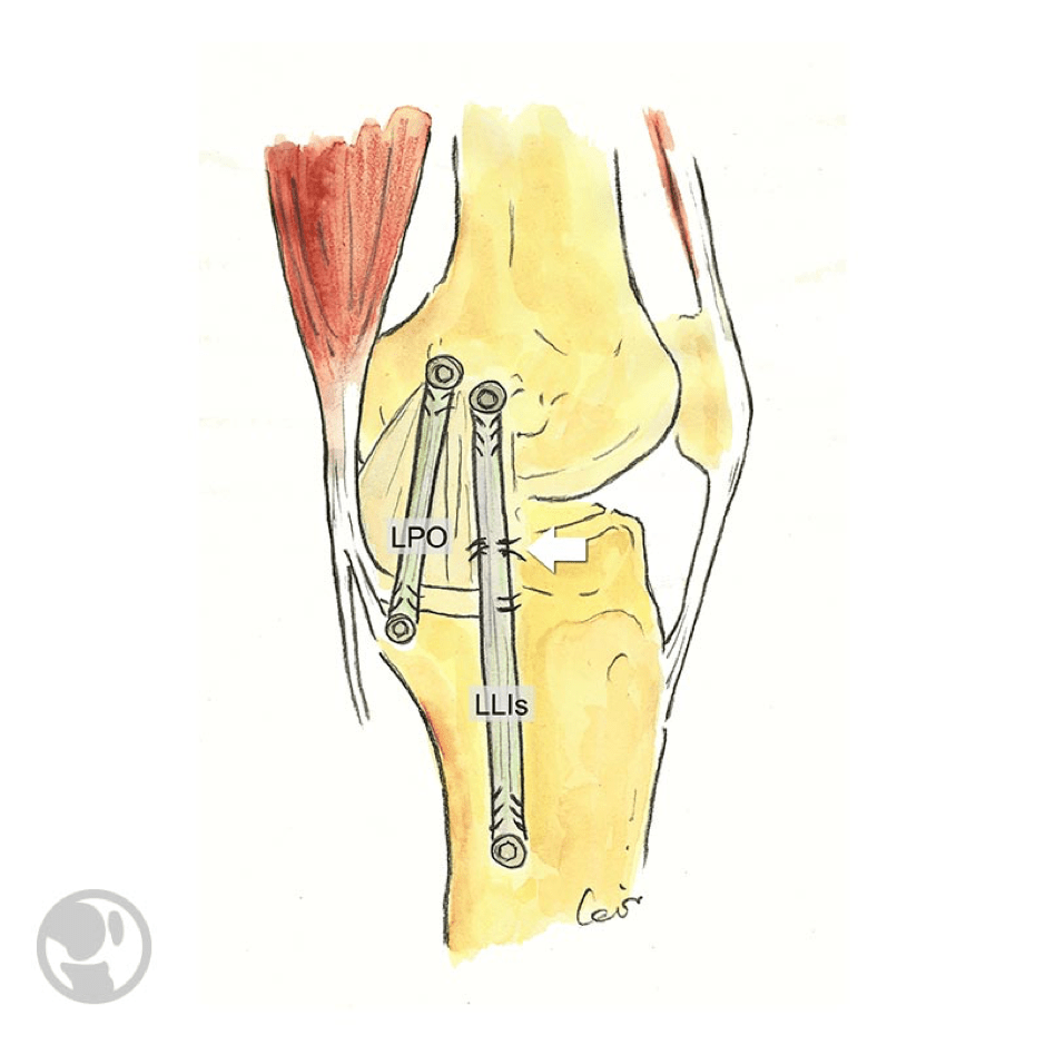 vison anatomica de la rodilla