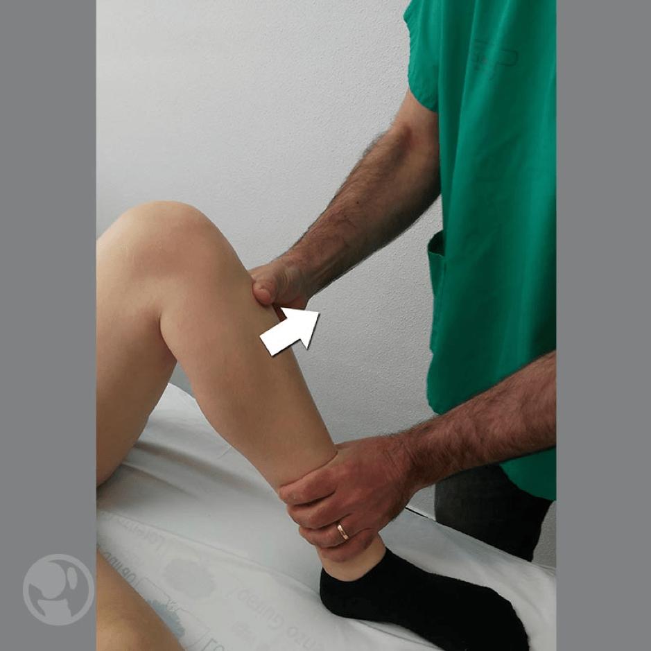 Cajón anteromedial: con la rodilla flexionada a 90º y el pie en rotación externa de 10º a 15º se aplica una combinación de cajón anterior y rotación externa y se observa el grado de rotación tibial anteromedial.