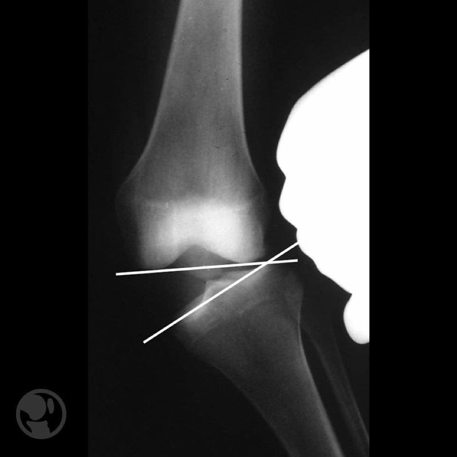 Radiografía en estrés en valgo con apertura del compartimento medial.