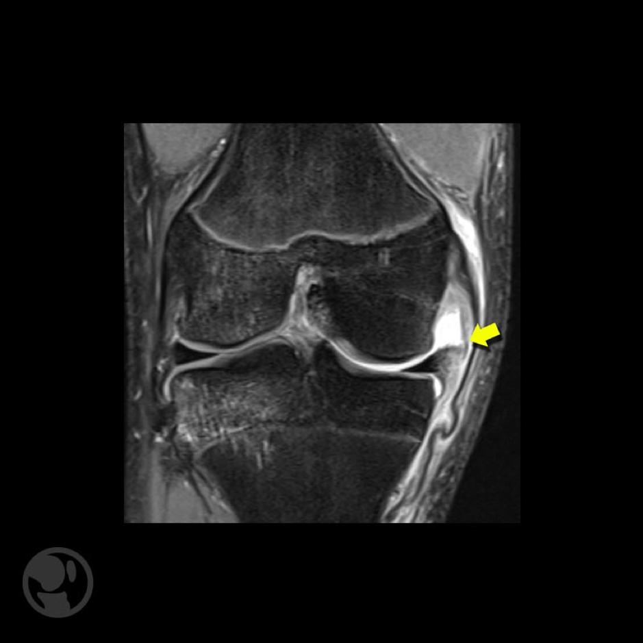 Lesión aguda grado III del ligamento lateral interno y foco de contusión ósea del compartimento lateral.