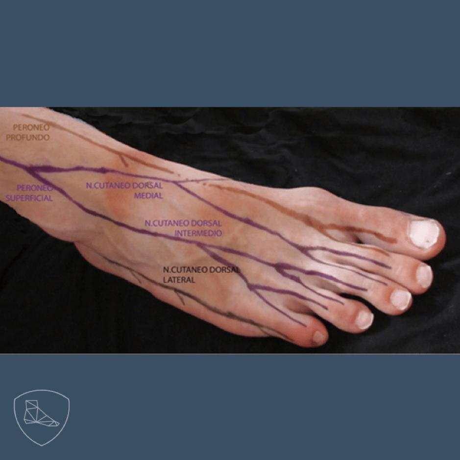 Anatomia de superficie del Nervio peroneo superficial.