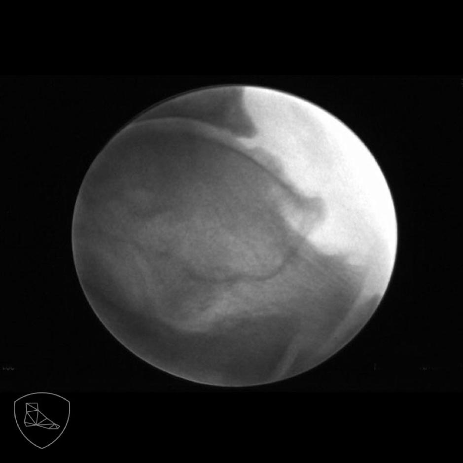 Exostosis en zona anterior del astragalo causa de atrapamiento del N. Peroneo profundo.