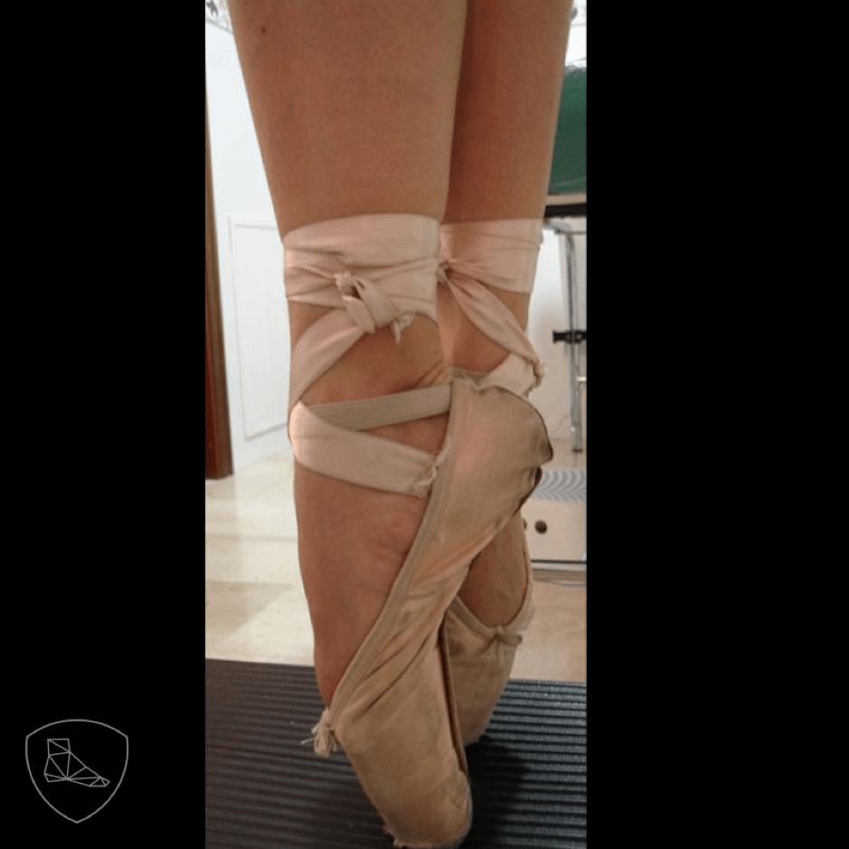 Posición en ballet clásico que puede comprometer estructuras nerviosas.