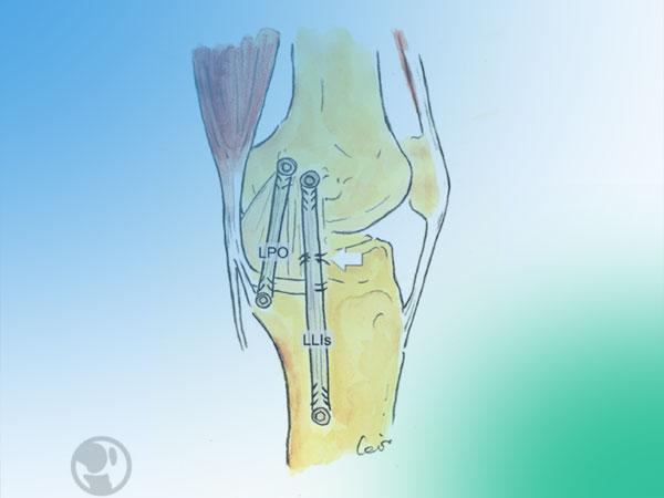 Lesiones ligamentosas mediales de la rodilla ¿Cómo tratarlas?