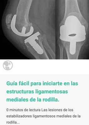 Guia facila para iniciarte en las estructuras mediales de la rodilla