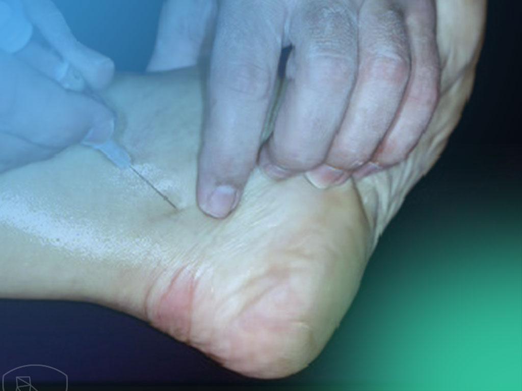 Descubre la Técnica de Cirugía Percutánea del pie. (I)