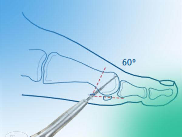 Angulo y trayecto de abordaje en la cirugía percutánea del pie. (II)