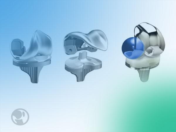 Gonartosis e implantes