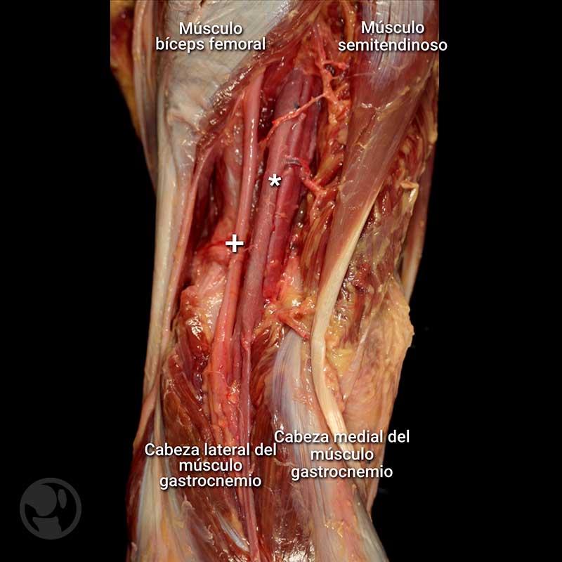 Arterias Rodilla