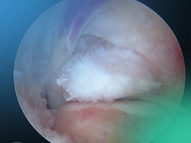 Descubre la Tendoscopia del flexor hallucis longus