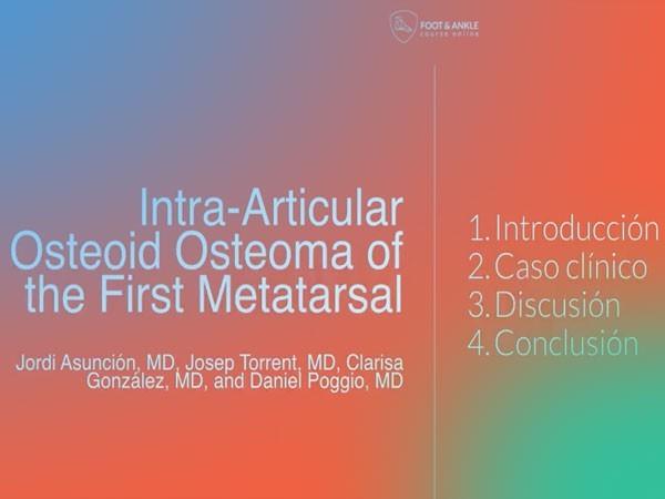 Actualización; Intra-Articular osteoma osteoide (Video).