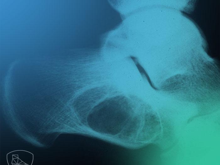 Clínica de la patología tumoral en el pie y tobillo.