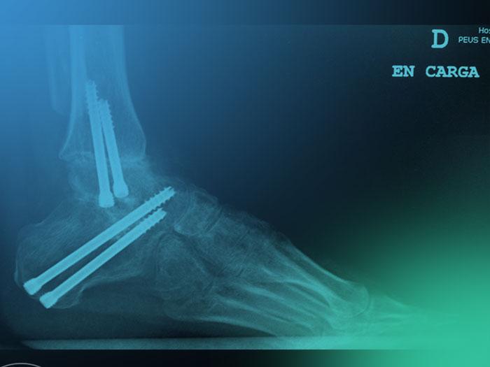¿Cuál es el objetivo al realizar una artrodesis de tobillo? Planificación preoperatoria