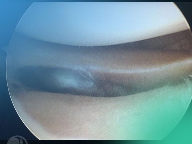 Descubre las técnicas quirúrgicas y portales mas habituales en la artroscopia de rodilla