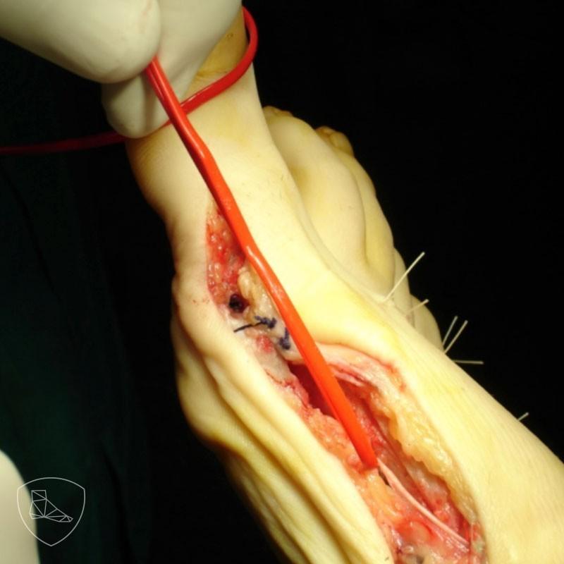 Disección anatómica del nervio plantar medial del hallux
