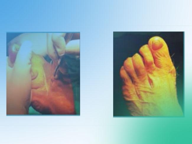 Incisión para las osteotomías de Weil: ¿una única transversal o dos longitudinales?