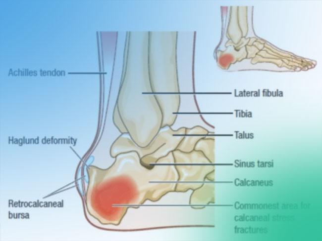 Talalgias ¿Qué son? Anatomía y clasificación