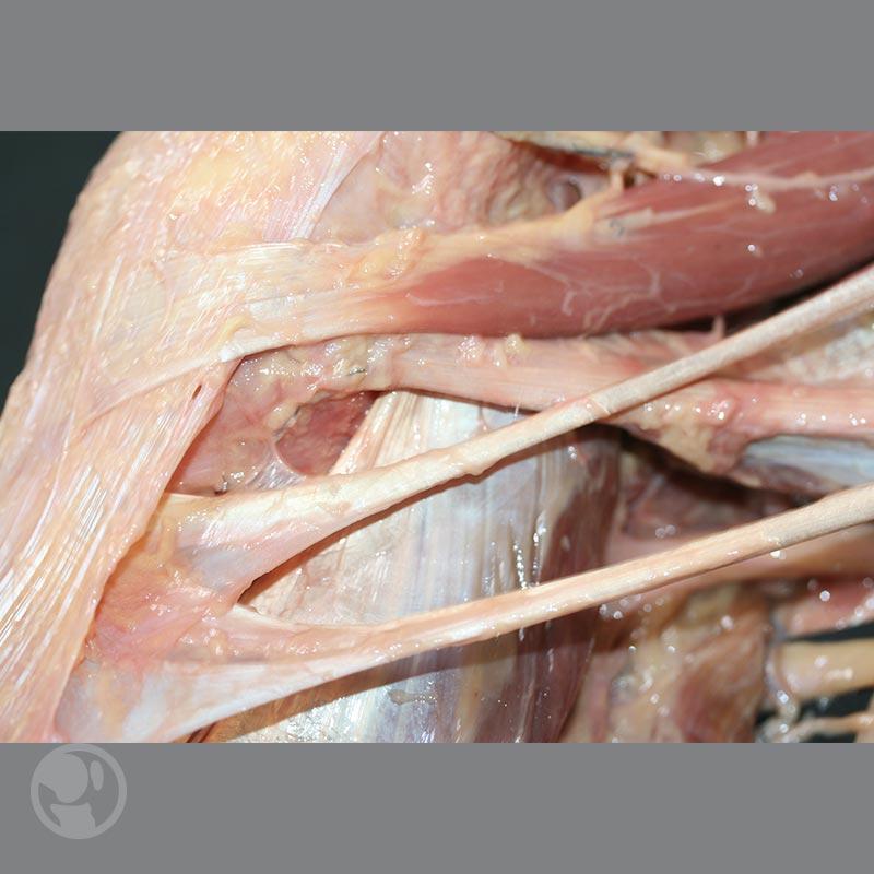 lesiones_ligamentosas
