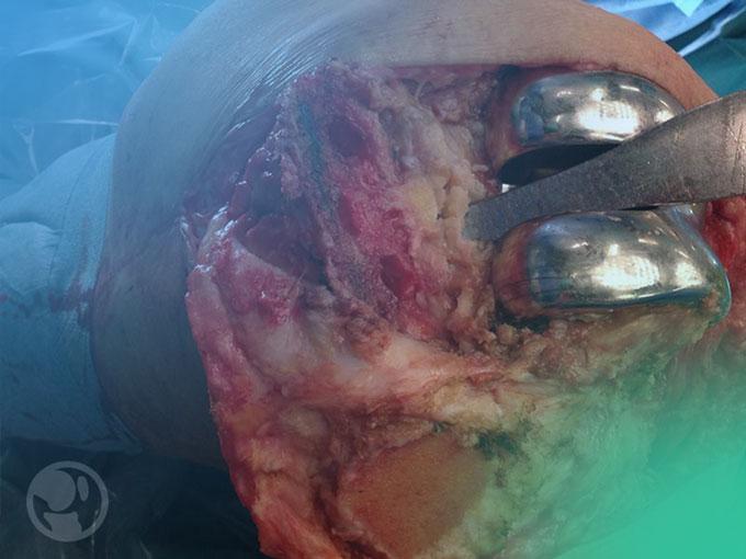 Gonartrosis: Conoce los factores de riesgo para la cirugía de revisión