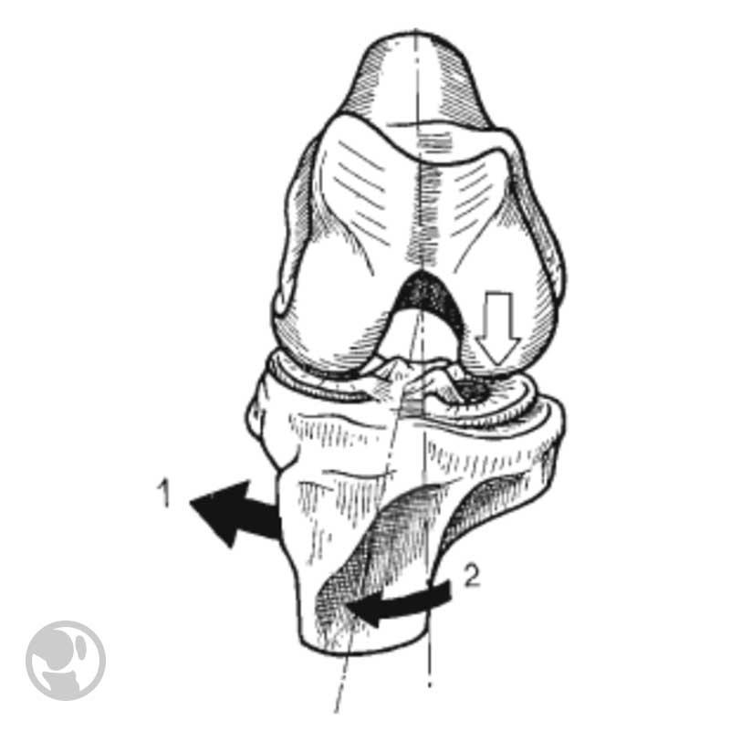 menisco