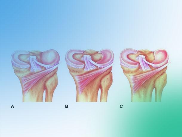 ¿Conoces las lesiones meniscales de rodilla y su clasificación?