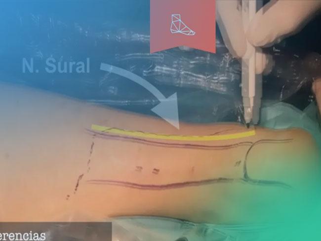 7 puntos a tener presentes en las lesiones ligamentosas de tobillo