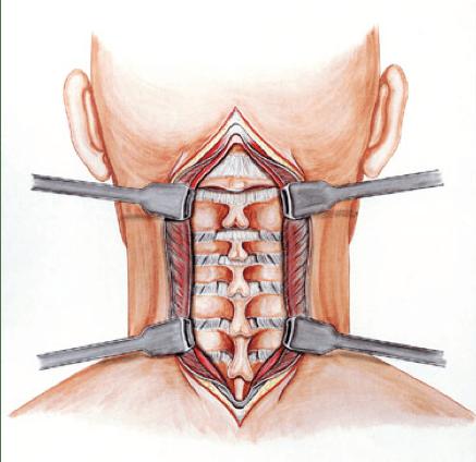 Abordaje cervical posterior.
