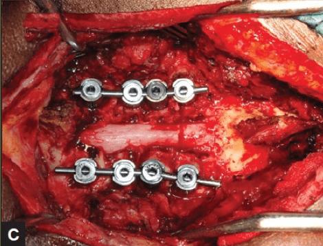 Abordaje cervical posterior. Instrumentación y laminectomía descompresiva.