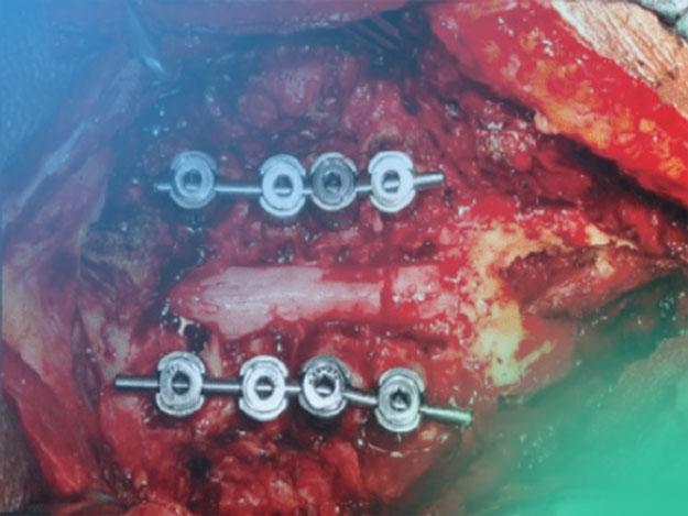 Todo lo que deseas saber del abordaje quirúrgico de la columna cervical