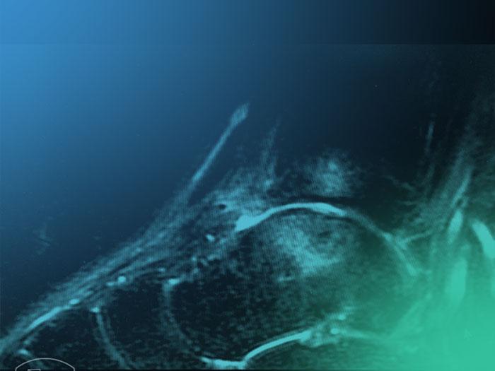 Paso a paso del trat. conservador de las lesiones ligamentosas del tobillo