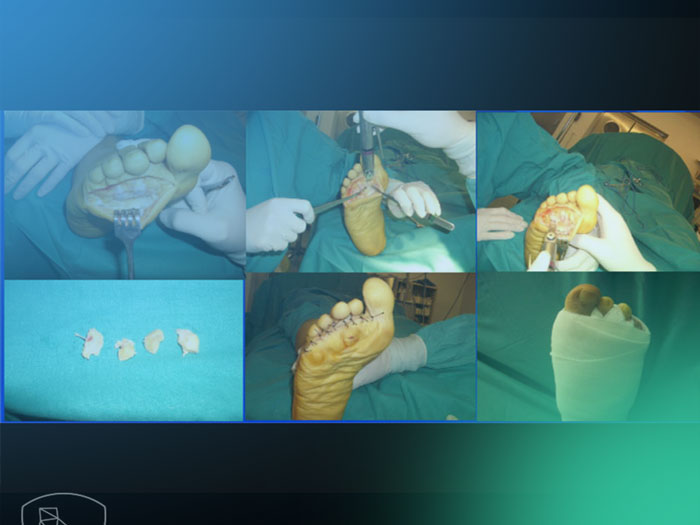 Tratamientos para grandes deformidades provocadas por metatarsalgias.