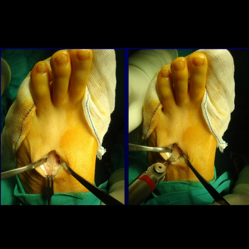 Osteotomía de Golfard