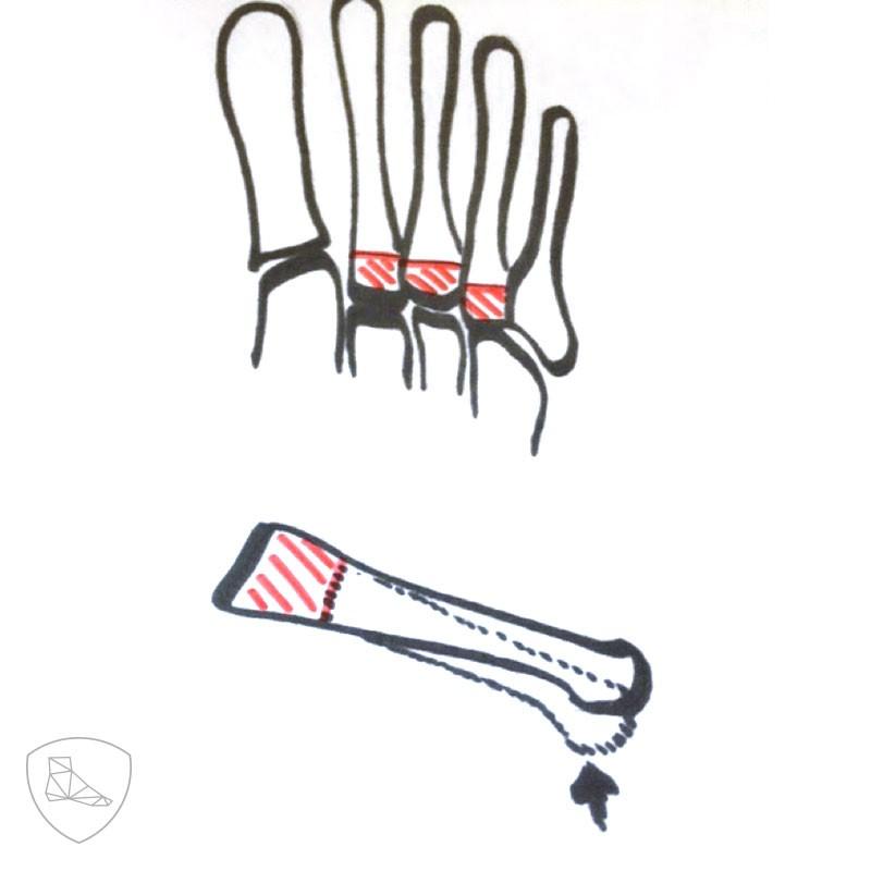Osteotomía de Rocher