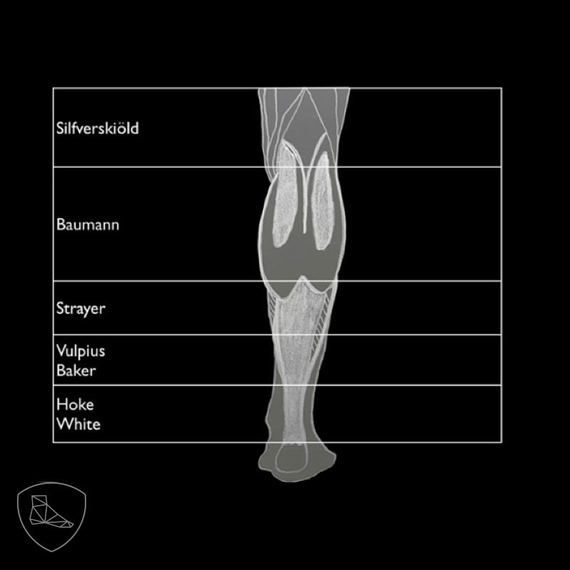 osteochondroza de gradul 1 al articulației umărului)