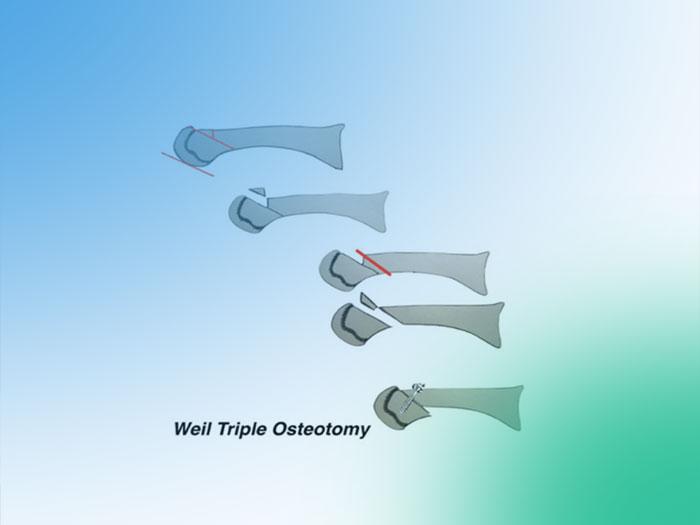 Paso a paso de la Osteotomía de Weil. (Metatarsalgias del 3er Rocker propulsivas)