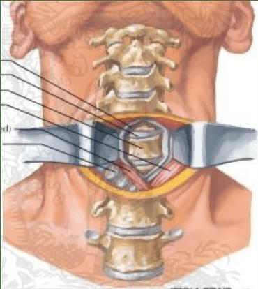 Abordaje cervical anterior.