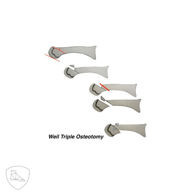 Triple osteotomía de Weil