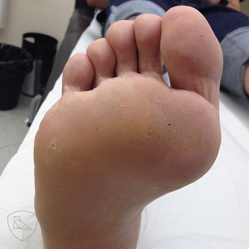 Lesion hiperapoyo
