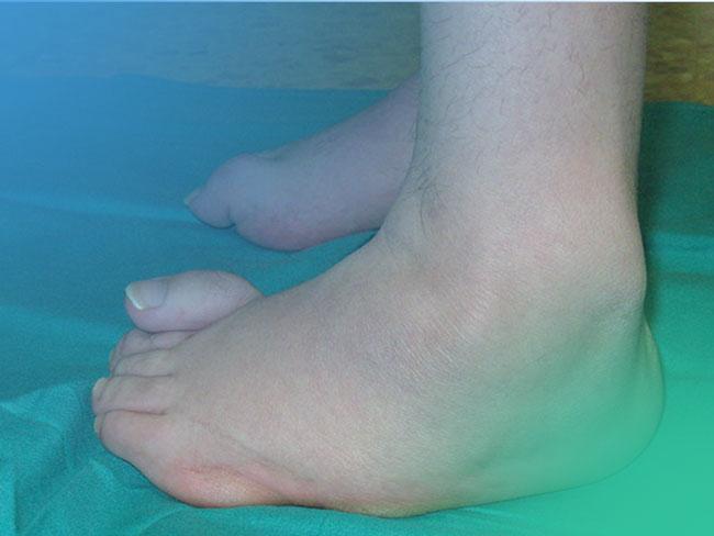 Descubre el pie cavo y sus causas