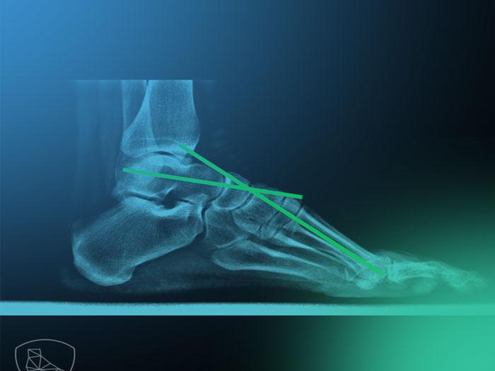 Todo lo que no sabias sobre la clínica y exploración del pie cavo