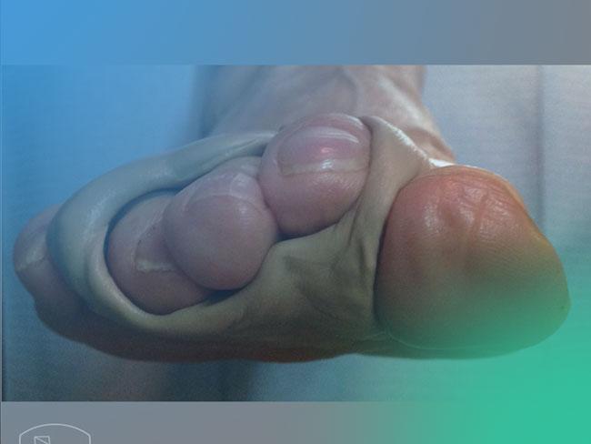 La mejor guía práctica para el Tratamiento de la patología de los dedos menores