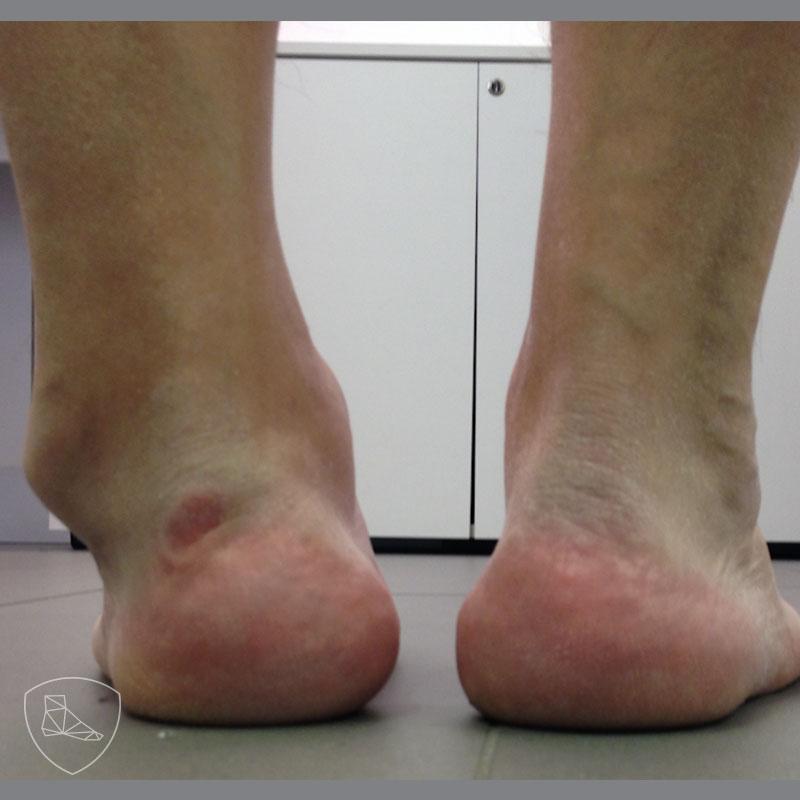 Secuela de fractura bimaleolar tratada ortopédicamene con mala reducción.