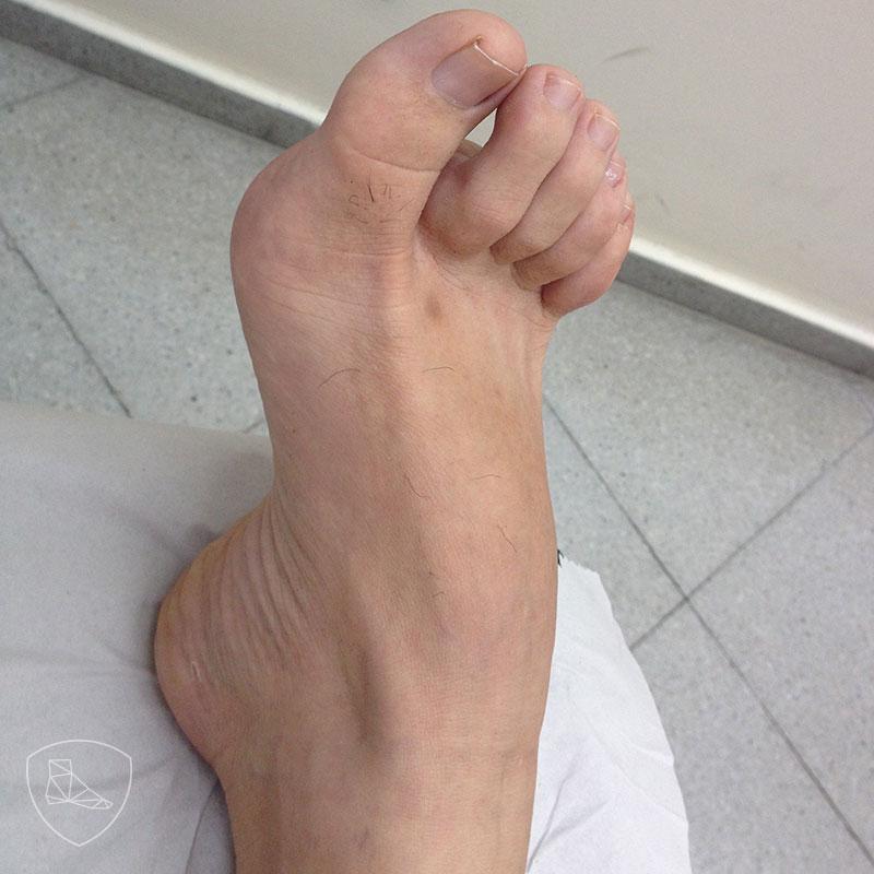 Pie cavo en deportista a expensas de hipertrofia de la musculatura corta plantar; obsérvese la actitud en garra de los dedos menores.