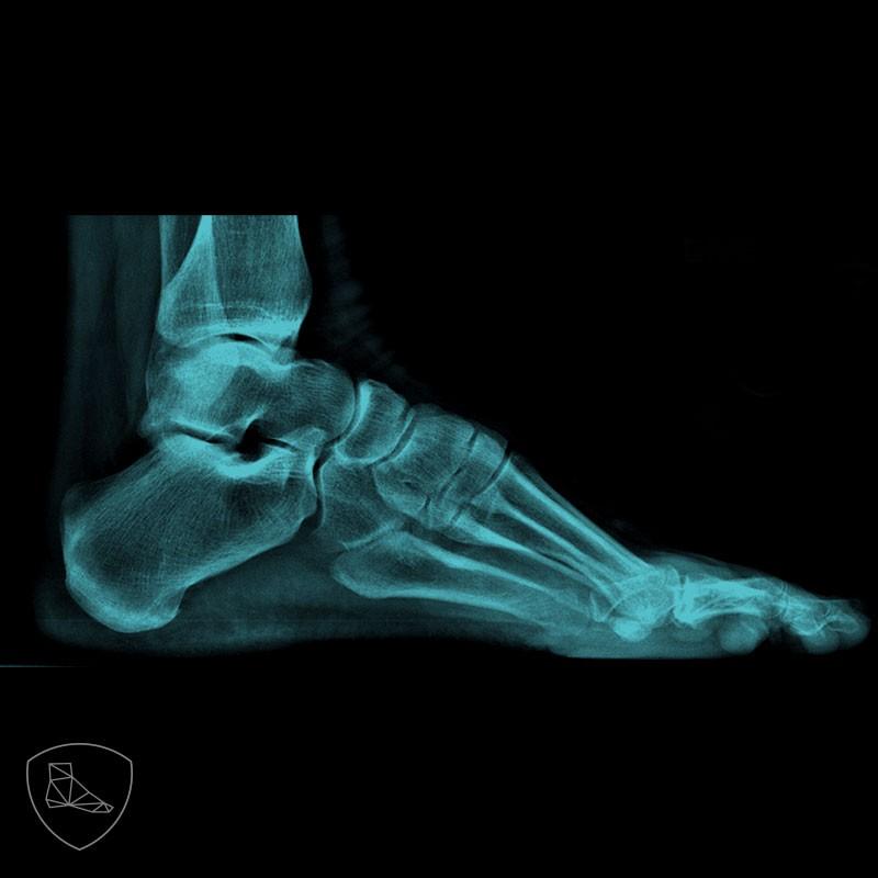 Imagen radiográfica de pie cavo.