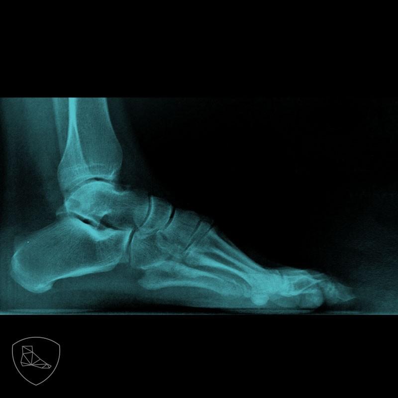 Imagen radiográfica del mismo caso anterior donde apreciamos el cavo con ápex en la articulación talonavicular.