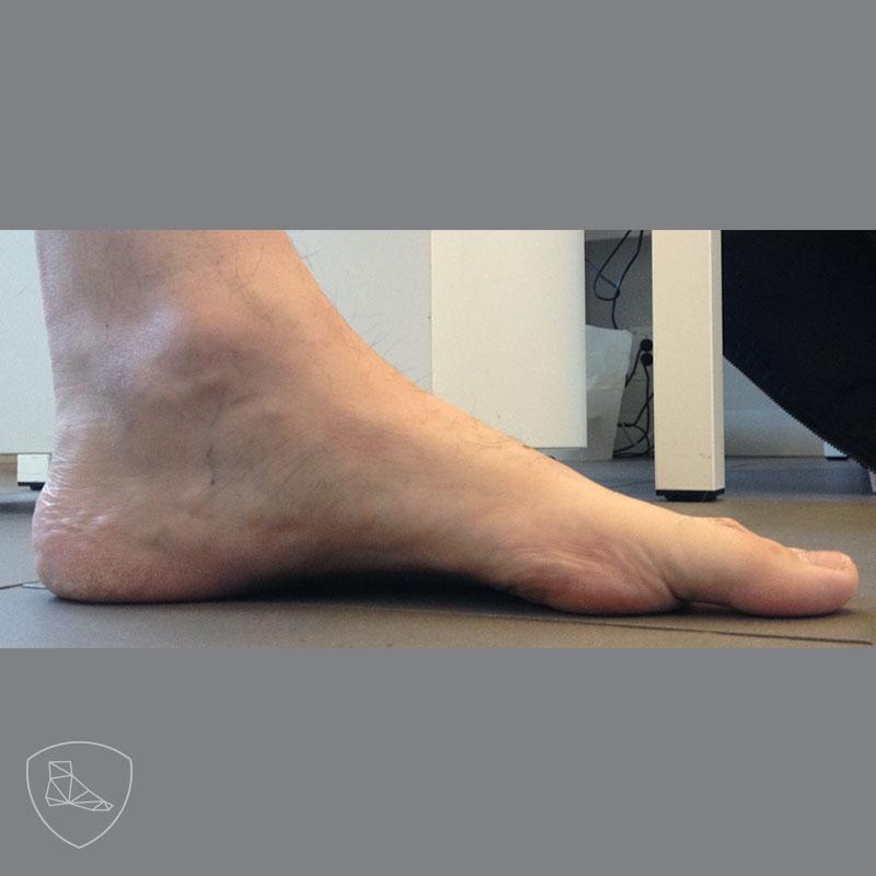 Imagen perfil de paciente con leve cavo con apex en mediopié