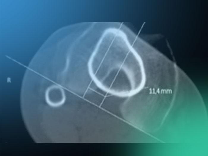 Descubre la utilidad de TAC en los diagnósticos de rodilla