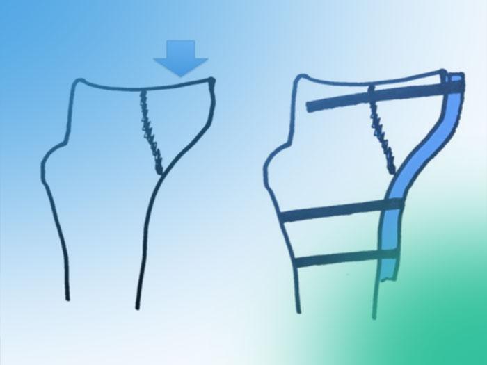 Fracturas de la meseta tibial y sus vías de abordaje