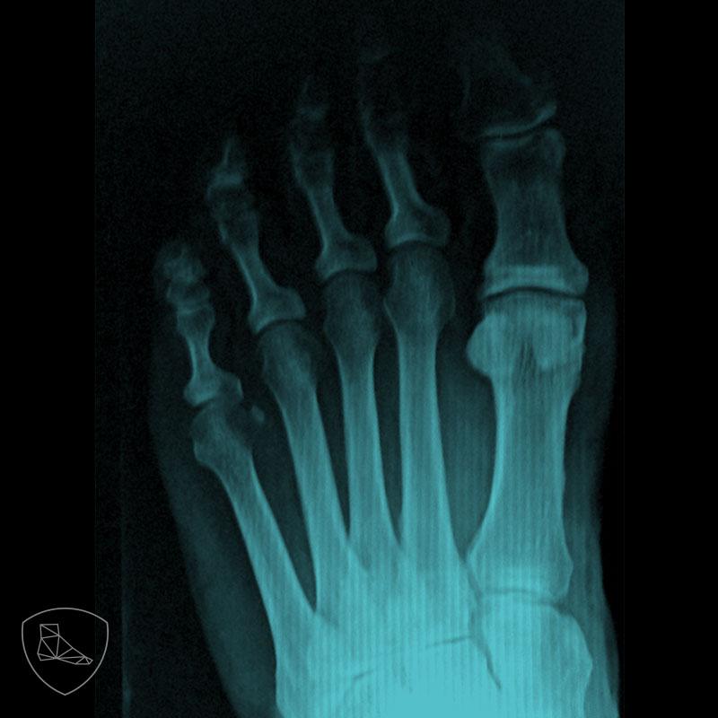 Proyección radiológica posteroanterior en paciente con dedo en maza con integridad de las articulaciones MTF.